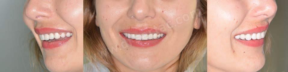 Estetik Zirkonyum Diş Kaplama ve Porselen Diş Kaplama Fiyatları