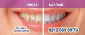 Diş temizletme ve beyazlatma fiyatları Türkiye İstanbul da ne kadar?