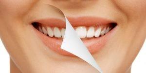 Diş beyazlatma Türkiye İstanbul fiyatları
