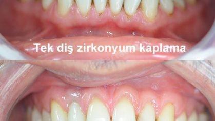Üst çene zirkonyum diş kaplama