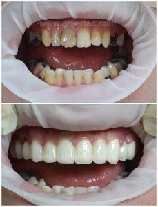 zirkonyum diş kaplama önce sonra örnek