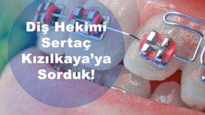 Çarpık Yamuk Eğri Dişler