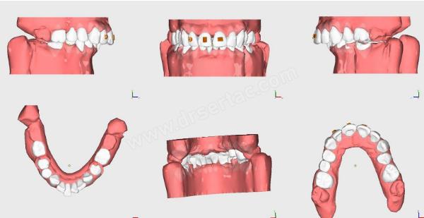 Şeffaf Plaklar ile Ortodonti